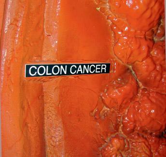 colon3.jpg