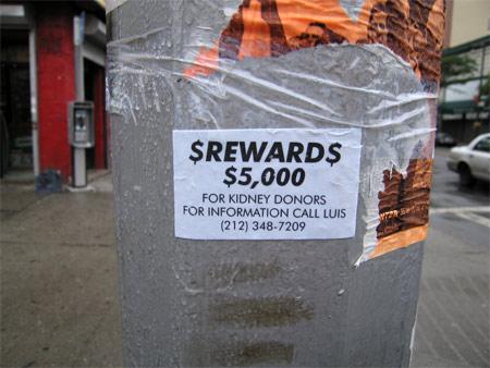 Kidney_reward